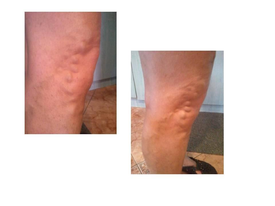 Tejtermékek visszér ellen - Tej mézzel prosztatagyulladás ellen Venotonikus prosztatagyulladás
