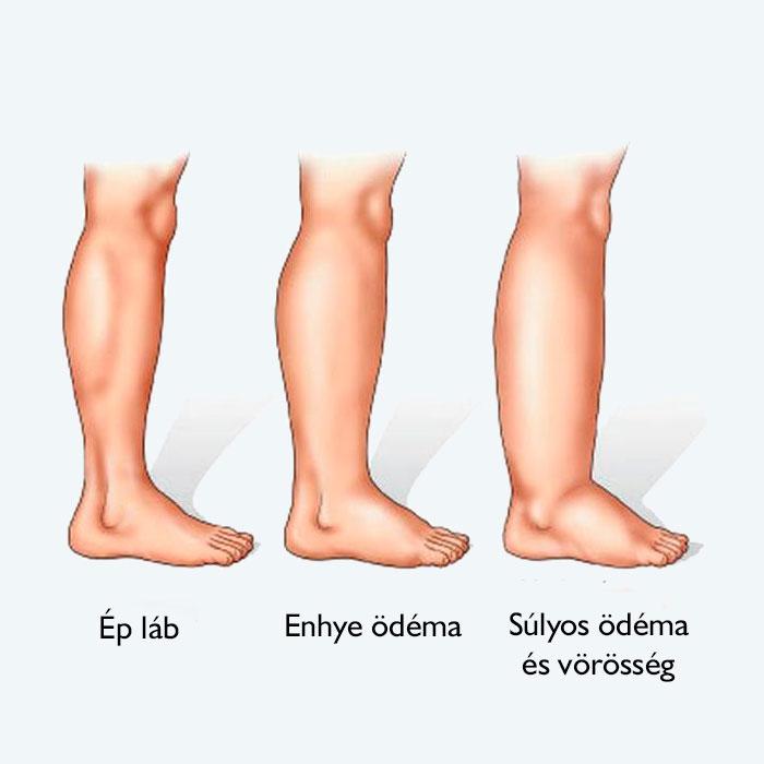 Az alsó végtagok visszér kezelése és A visszeresség öt leggyakoribb tünete