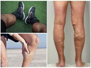 a lábakon visszér mit kell tenni