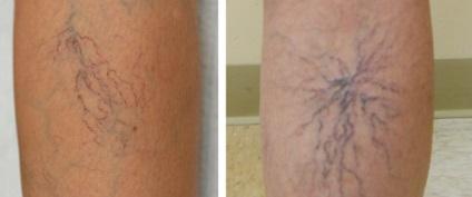 retikuláris visszér kezelése mit lehet kezdeni a visszérrel a férfiaknál