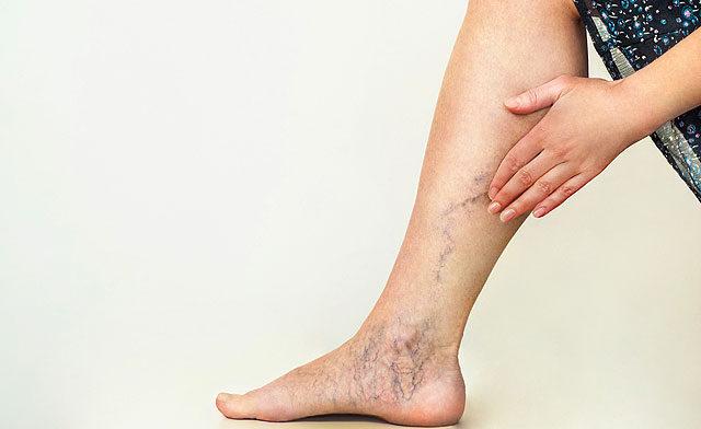 milyen fájdalmak vannak a lábak visszérrel