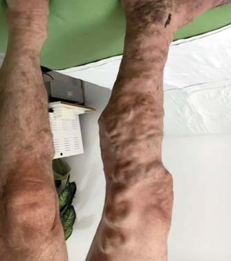 fekély visszeres vénákkal a lábakban