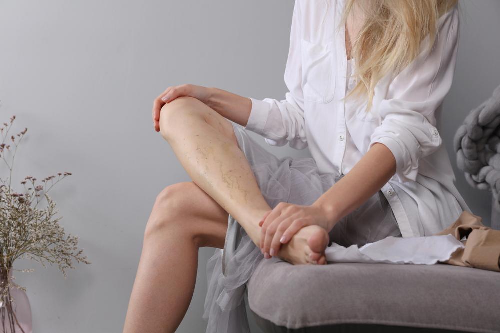 a rúd a lábak varikózisával lehetséges visszér kezelése tinktúrával