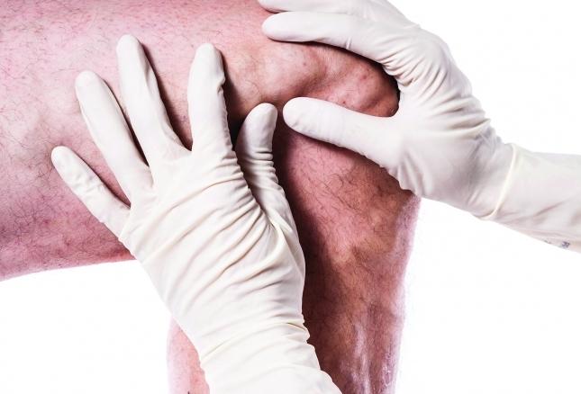 hirudoterápia a visszér károsodásához legjobb otthoni gyógymód a visszér ellen
