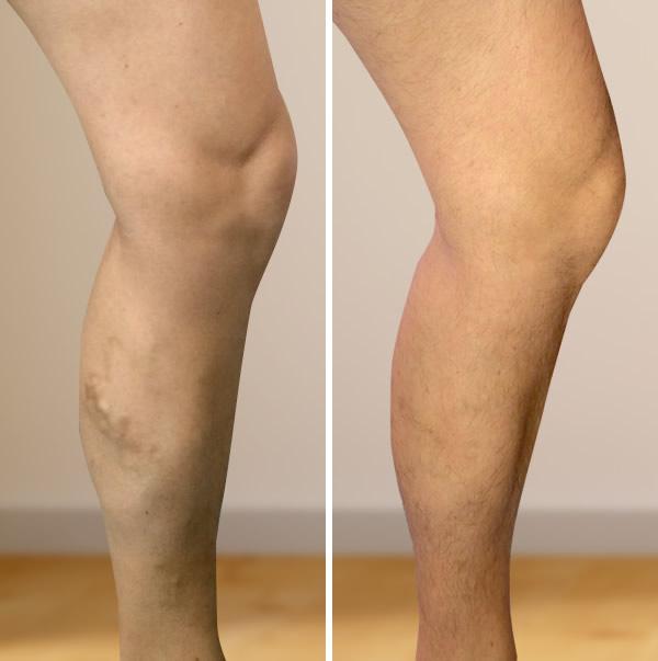 lézeres műtét visszér a lábakon vélemények