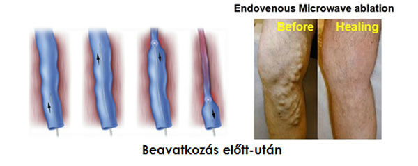 mi a különbség a visszerek és a thrombophlebitis között fotó