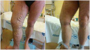 műtét után visszér következmény aevit visszerek