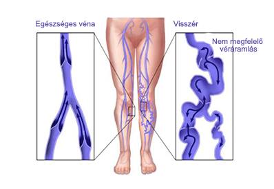 Összeesküvés a visszerek a lábak erős