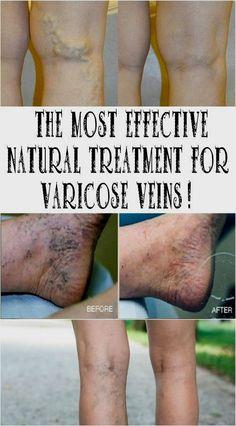 az alsó végtagok varikózisának oka a férfiaknál fájdalom a lábakon, visszér vélemények