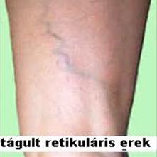 csillag a láb varikózisán