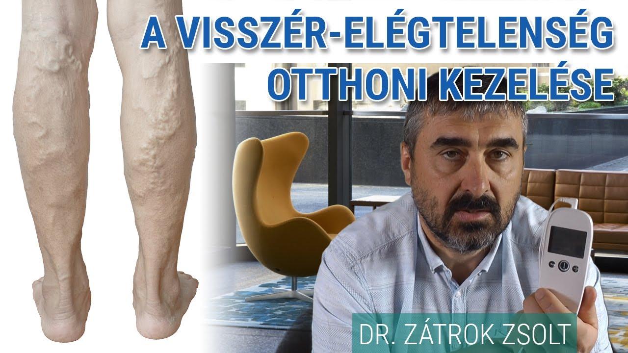 visszér mindkét lábán lіkuvannya visszér a lábakon