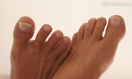 a lábak duzzanata visszér nélkül kezelés alufóliával visszeres vélemények