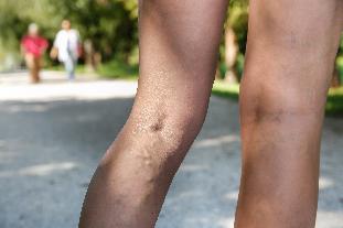 visszér a lábakon kezelés táplálkozás