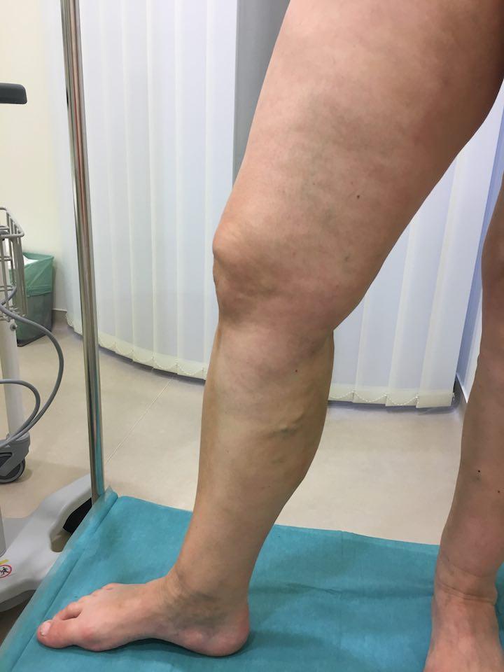 hogyan lehet eltávolítani a láb visszerét