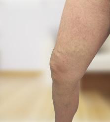 visszér injekciók videó aki a lábakon visszérgyulladást gyógyított