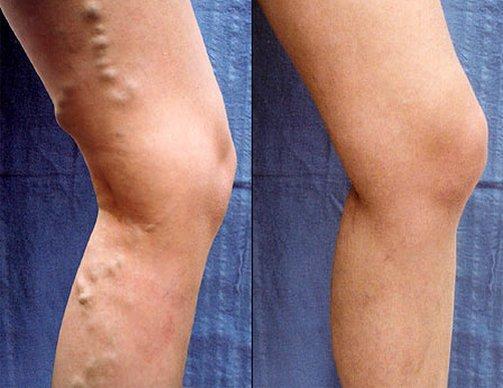 visszér a cigaretta miatt a varikózistól duzzadt láb és fáj