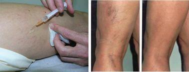 visszér kezelés szkleroterápia ára krém a visszerek visszér kezelésére a lábakon