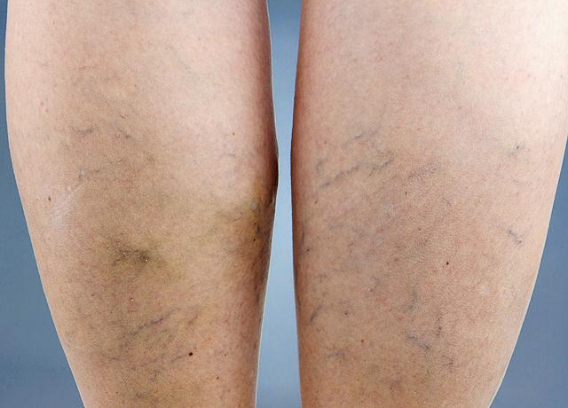 venotonics a visszér a lábak vélemények ára