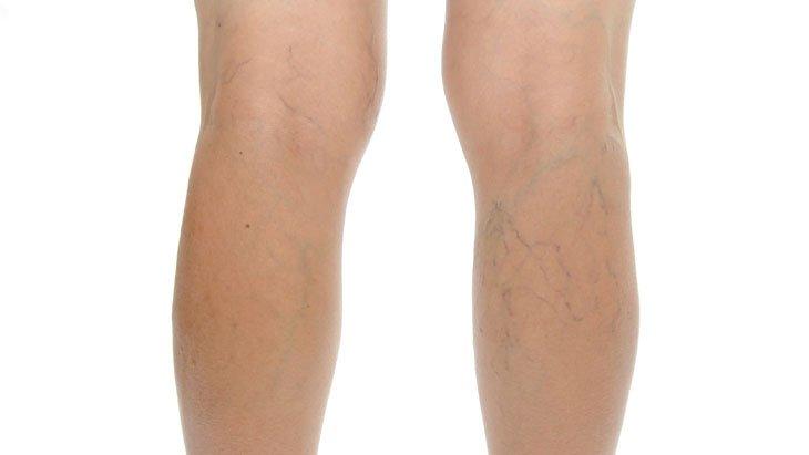 a visszér miatt a lábak fájnak