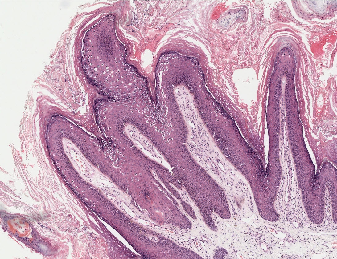 Diuretikumok emelt és csökkentett nyomással - Thrombophlebitis - September