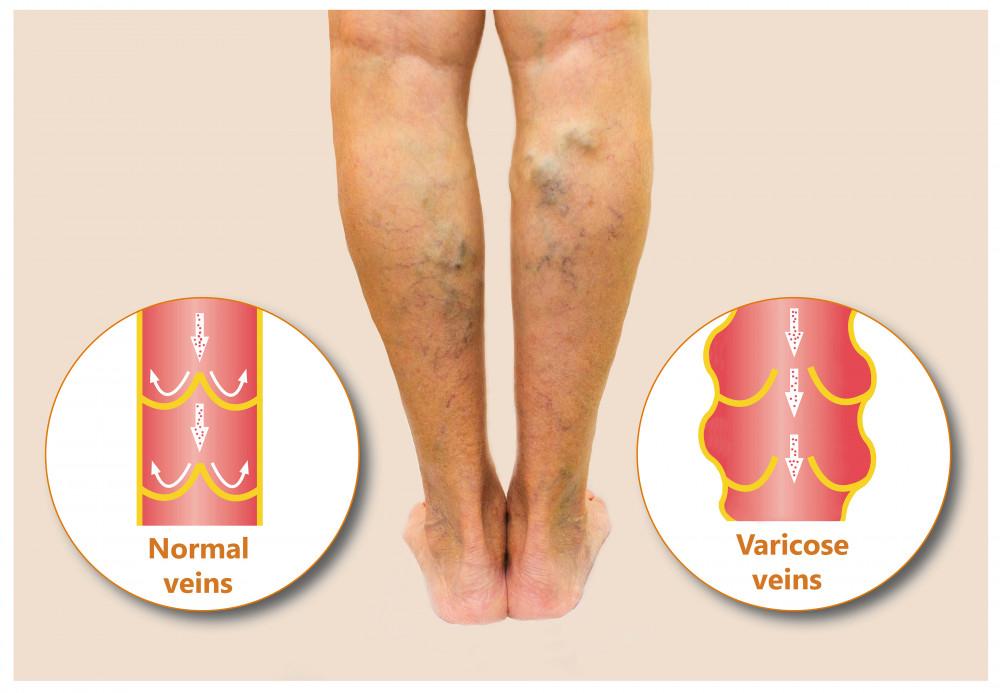Miért csökkenti a lábak vénáit és hogyan kell kezelni a visszeres görcsöket - Az okok