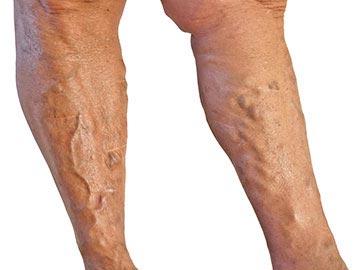 visszér a lábakon krém