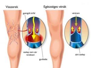 visszér és cordyceps a bpv rendszer visszér