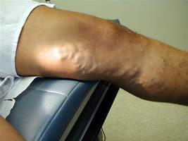 mit kezdjen a visszér népi gyógymód terhesség műtét után visszér a lábakon