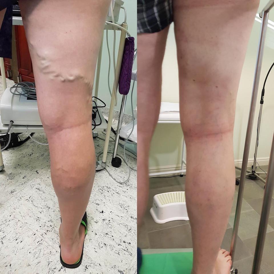 a varikózis eltávolítása a lábakon lézeres következményekkel telangiectasias és az alsó végtagok retikuláris varikózisai