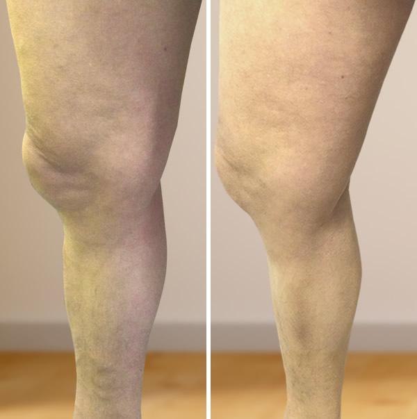 visszér a lábakon, hogyan gyógyultál meg visszér műtét Mariupolban