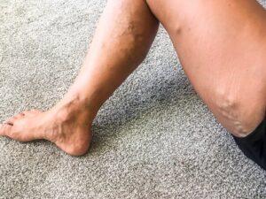a visszér kezelése nincs visszeresség a lábak terhesség alatt.