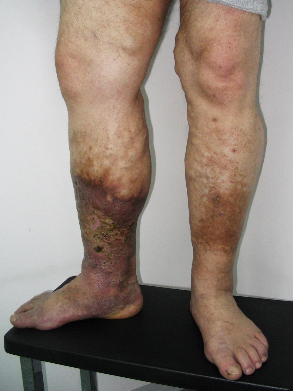 hogyan ne lehetne megelőzni a visszereket a lábakon