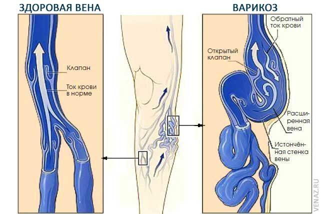 az alsó végtagok varikózus vénái thrombophlebitisben visszér, mit kell tenni a műtét nem segített