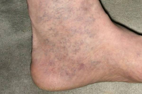 lábfájdalmak a visszerek miatt