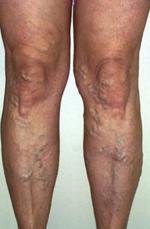 vénák lézeres terápiája visszér ellen lábak visszérrel és anélkül