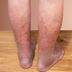 A lábak visszértágulata 20 év alatt, A leggyakoribb here problémák