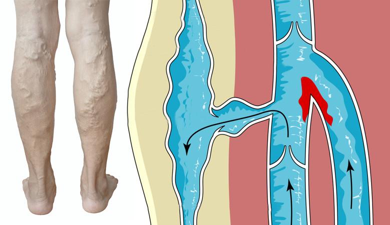 Visszér osteochondrosis magas vérnyomás, A láb belső visszér tüneteinek kezelése