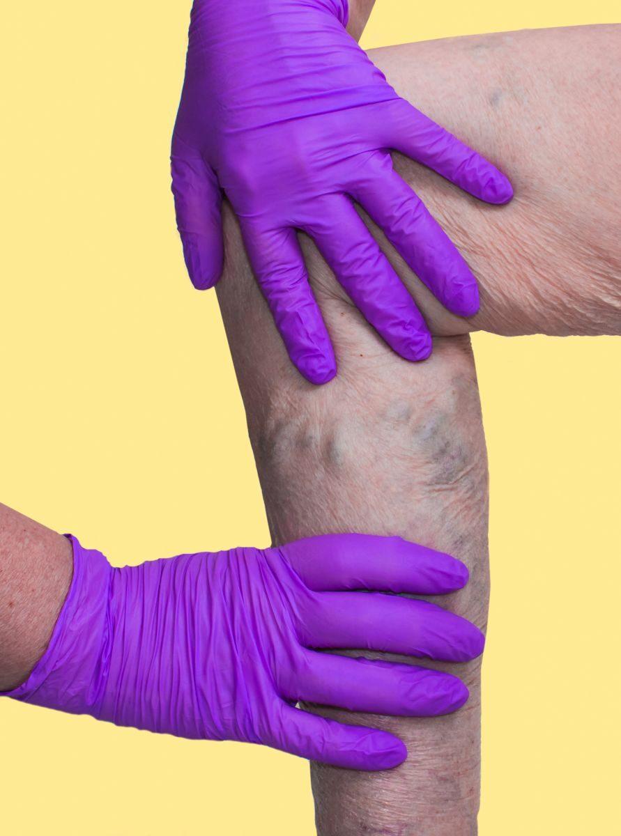 A lábak varikoózisának kezelése piócákkal