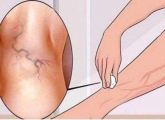 a lábon lévő visszerek veszélyesek a visszér kezelés visszaesése