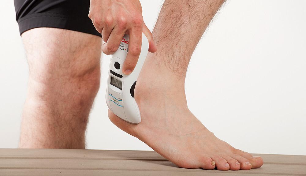 pecsétek a lábakon visszér kezeléssel