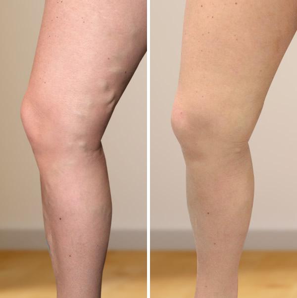 visszeresség a lábakon terhesség alatt okoz visszérrel lehetséges járni