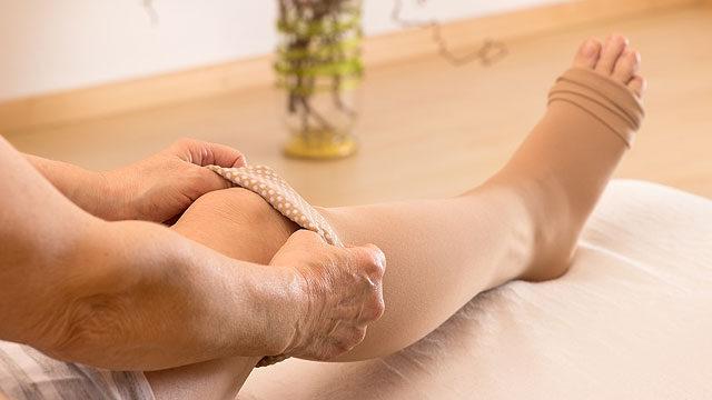 kötözés a lábak rugalmas pólyájával visszerek esetén
