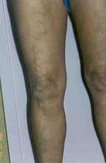 visszeres véraláfutású láb hematoma