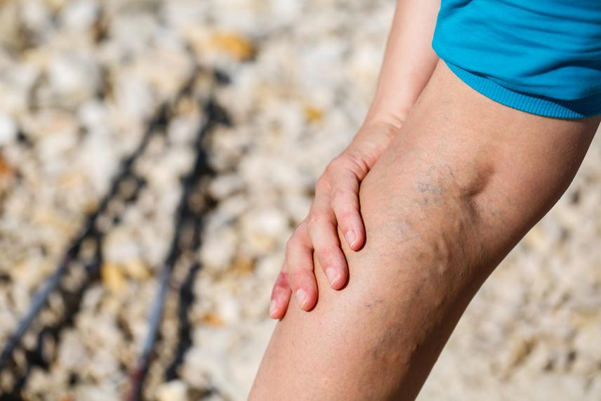 miért visszér az egyik lábán szerecsendió visszeres kezelési receptek