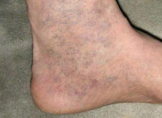 visszér a lábakon, amelyet az orvos kezel