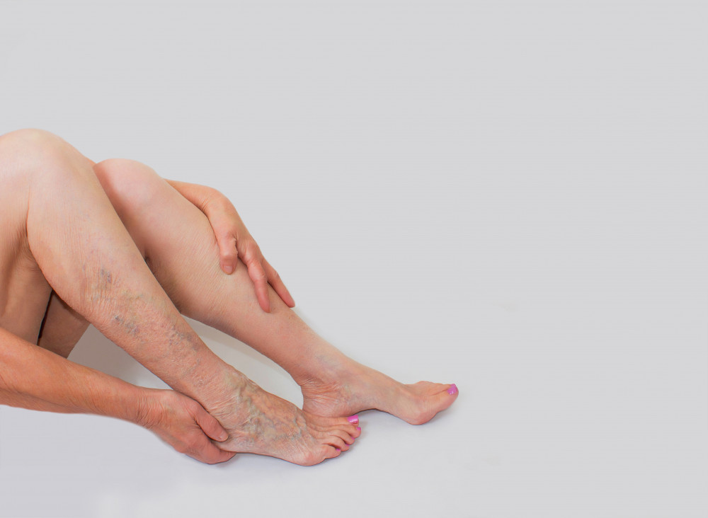 lábak dörzsölése a visszerekből