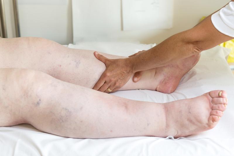 A láb duzzanata és vörössége