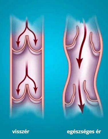 visszértágulat melegítheti a lábát