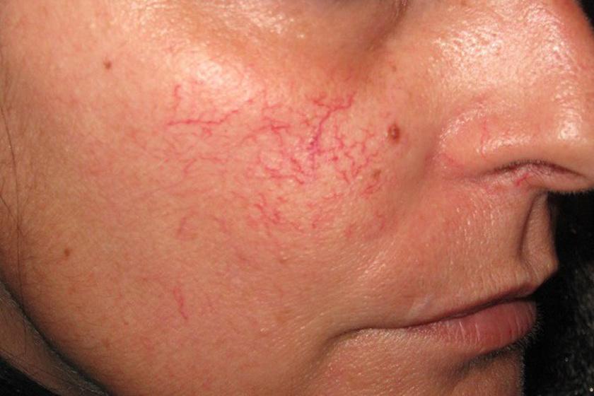 hogyan kezeljük az orr visszérét