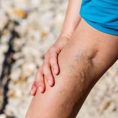 visszér a lábakon allergia